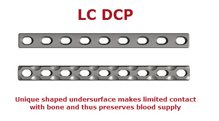 limited contact dynamic fracture plating