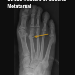 Stress fracture of second metatarsal