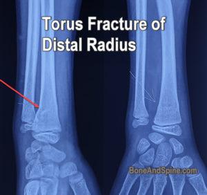 torus fracture of radius