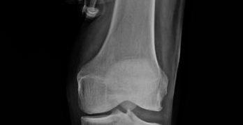Varus Stress View knee
