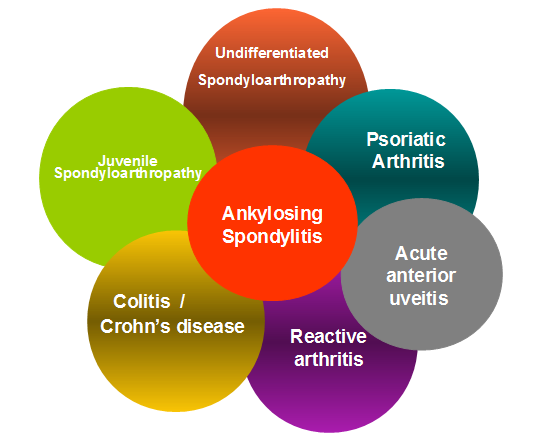overlap of spondyloarthropathies