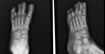 Xray of Kohler Disease showing flattening of navicular bone