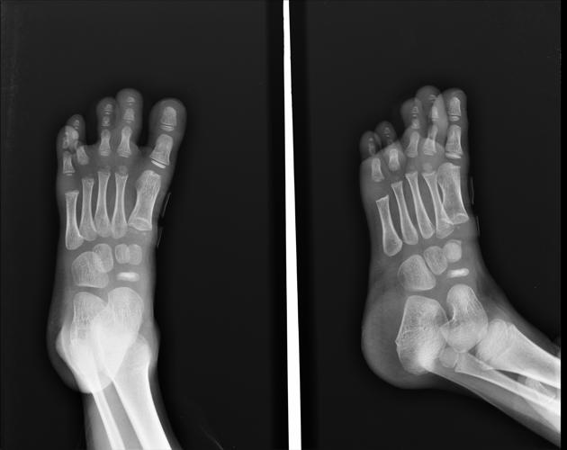 juvenile osteochondrosis of foot