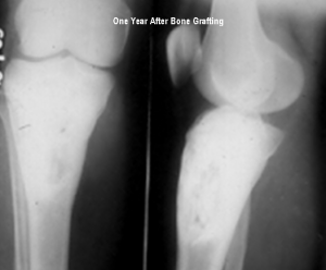 Xrays after one year of bone Graft show complete bone formation