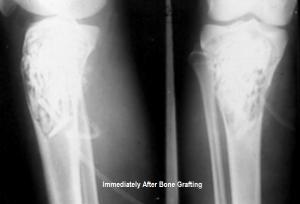 Xrays in immediate postoperative period after bone graft