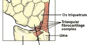 Triangular Fibrocartilage Complex