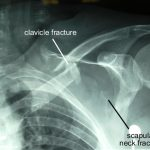 Floating Shoulder Xray
