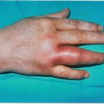 Gonococcal Arthritis of hand