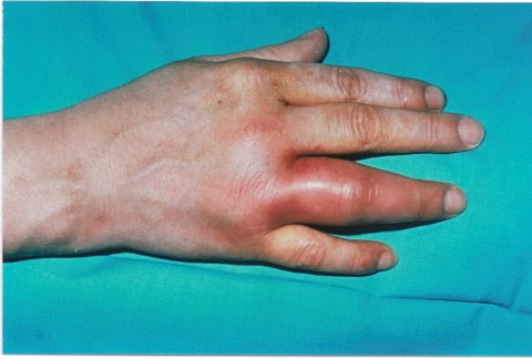Gonococcal Arthritis Symptoms Diagnosis An Treatmetn Bone And Spine