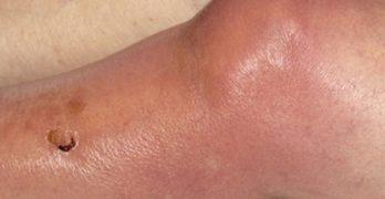 Septic Arthritis Knee