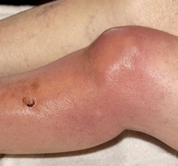 Septic Arthritis Knee