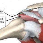 Impingement can lead to Rotator Cuff Tendonitis