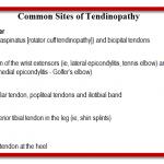 tendinopathy tendonitis tendinosis