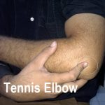 Simulation photograph of tennis elbow to depict point of pain
