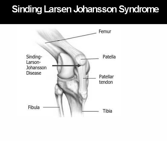 sinding-larsen-johansson-disease