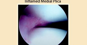 Synovial Plica Syndrome