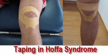 taping-Hoffa-syndrome