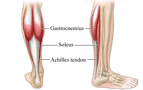 Achilles tendinosis site