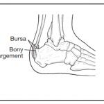 Haglund Deformity Diagram
