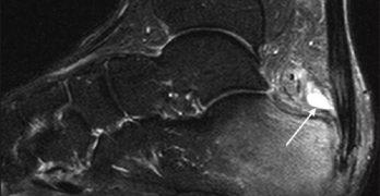 mri-retrocalcaneal-bursitis