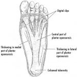 Plantar Fasciitis – Causes and Treatment