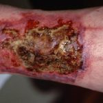 Wound Debridement Types