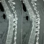 CT of Spine Injuries D4-D5