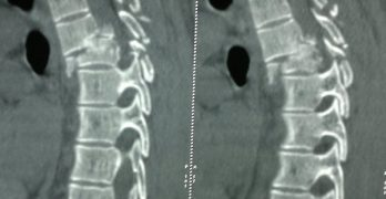 CT of Spine InjuriesD4-D5
