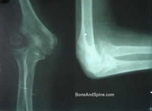 Nonunion of fracture of lateral condyle