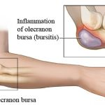 Normal Olecranon Bursa and Inflamed Olecranon Bursa or Bursitis