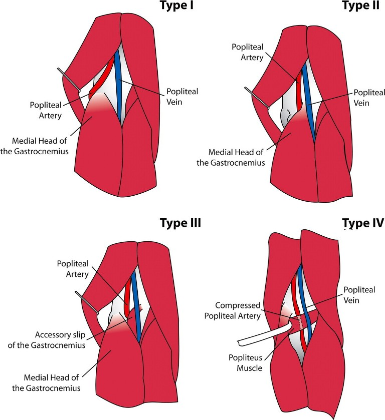 Popliteal Artery Entrapment Syndrome   Bone and Spine
