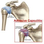 adhesive capsultis