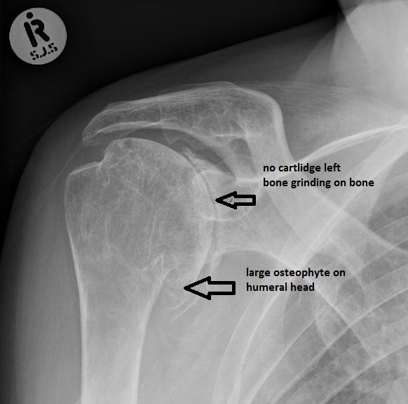 shoulder-osteoarthritis
