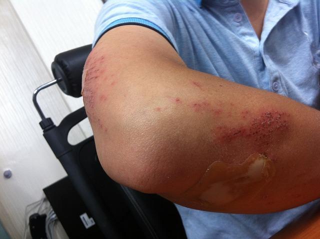 白血病: Elbow Pain Causes And Treatment