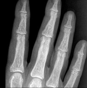 Primary Hyperparathyroidism - Symptoms and Treatment | Bone