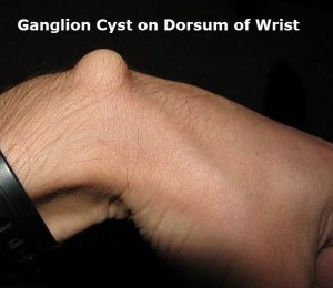 ganglion cyst on wrist