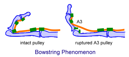 Bowstring phenomenon