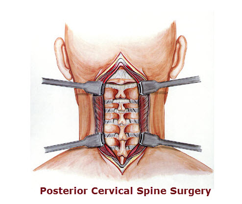 Illustration of Posterior cervical spine surgery