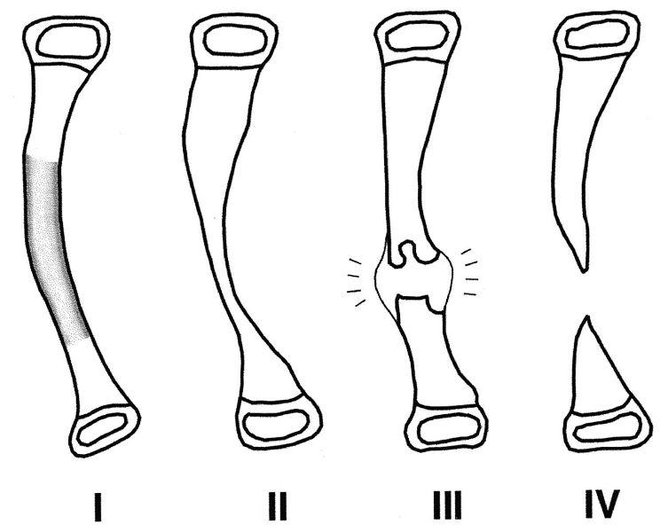 Congenital Pseudarthrosis Of Tibia