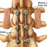 Lumbar spine surgery