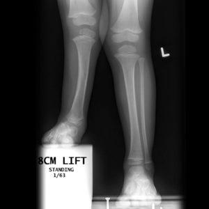 Standing xray in fibular hemimelia