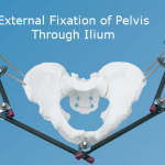 External fixation of Pelvis by Iliac Pins