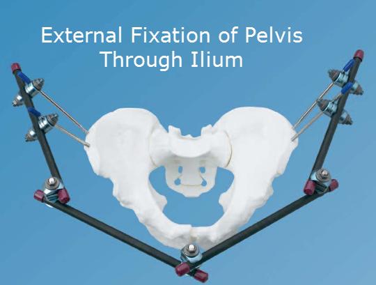 External fixation of Pelvis by Iliac Pins