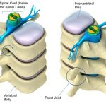 An illustration showing how vertebral canal is formed by stacking individual vertebral foramen on each other