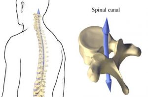 Vertebral Foramen and Canal Illustration