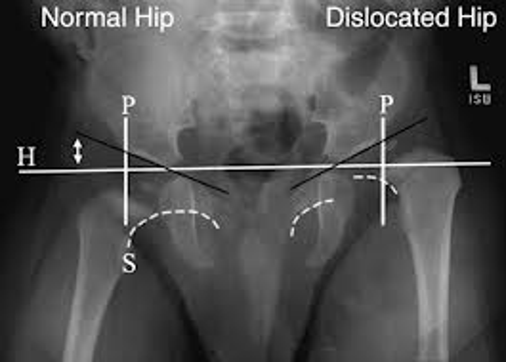 Developmental Dysplasia of Hip Xray. Left hip is dislcoated