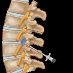 selective nerve root blocks