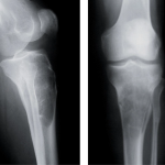Hydatid Cyst of Bone