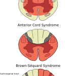 Incomplete spinal injuries