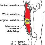 Types of Surgical Resection of Tumors